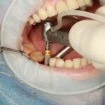 Les informations à retenir concernant l'implant dentaire avant de se lancer